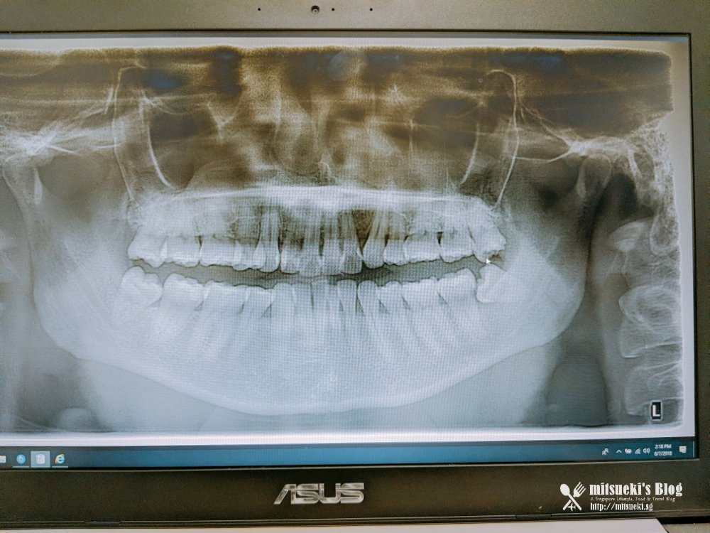 My Wisdom Tooth Surgery Experience At Q M Dental Removing All 4 At A Go 8 Jul 2018 Mitsueki Singapore Lifestyle Blogger Food Fashion Travel Random News